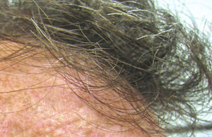 things about gray hair